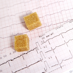 sugar EKG copy