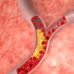 cholesterol_artery copy