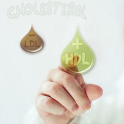 Anti-Inflammatory Function of HDL Cholesterol