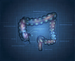 Precancerous colon polyps