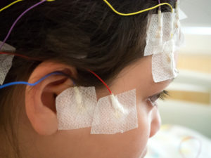drug-resistant epilepsy